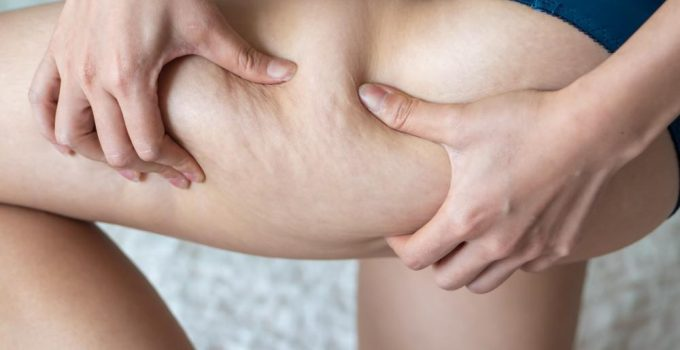 8 Things To Know About Cellulite in 2021