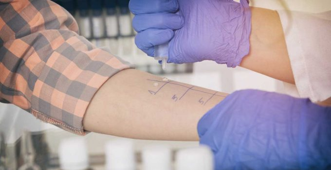 8 Things You Need To Know About DIY Allergy Testing