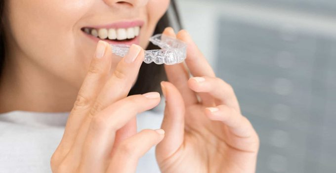 Are Invisible Braces Worth The Extra Cost